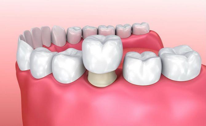 Чем заменить утраченный зуб — варианты протезирования 2