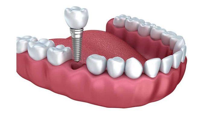 Чем заменить утраченный зуб — варианты протезирования 1