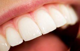 Нужно ли удалять зубы мудрости: когда стоит удалять восьмерки