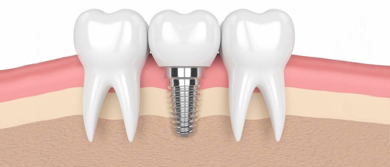 Чем заменить утраченный зуб — варианты протезирования
