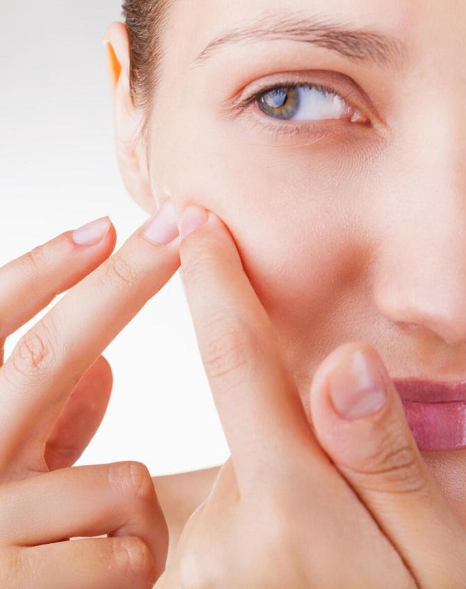 5 ошибок, которые мы совершаем при уходе за кожей с акне 3