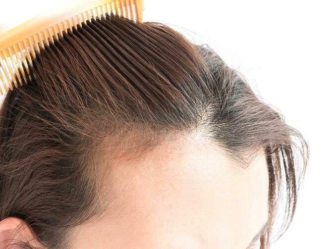 Уход за волосами после 40: правила, которым нужно следовать 5