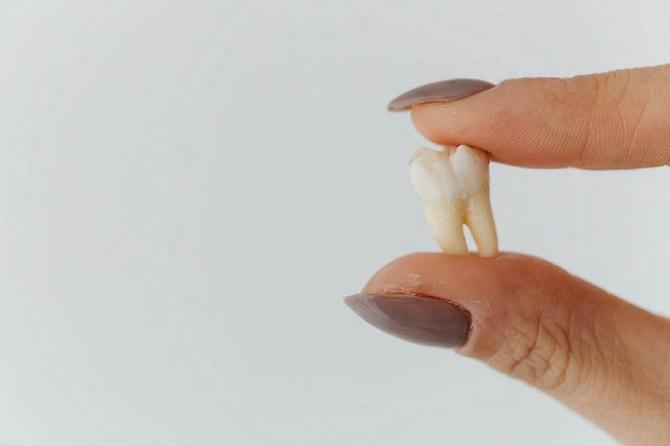 Нужно ли удалять зубы мудрости: когда стоит удалять восьмерки 1