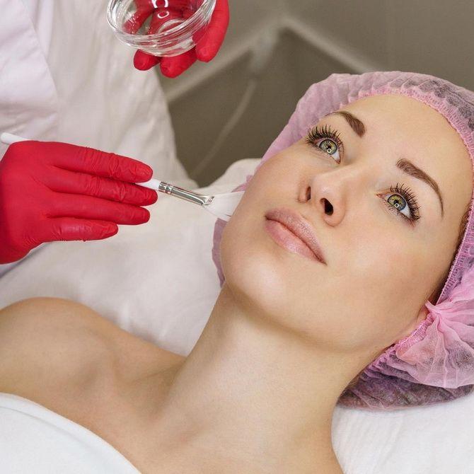 Косметика с кислотами: как выбрать подходящее средство для ухода за кожей 6