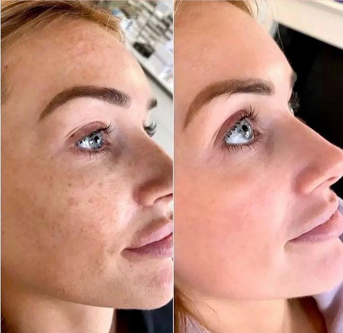 Косметика с кислотами: как выбрать подходящее средство для ухода за кожей 5