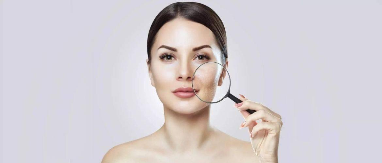 Как сузить поры на лице — 11 эффективных методов