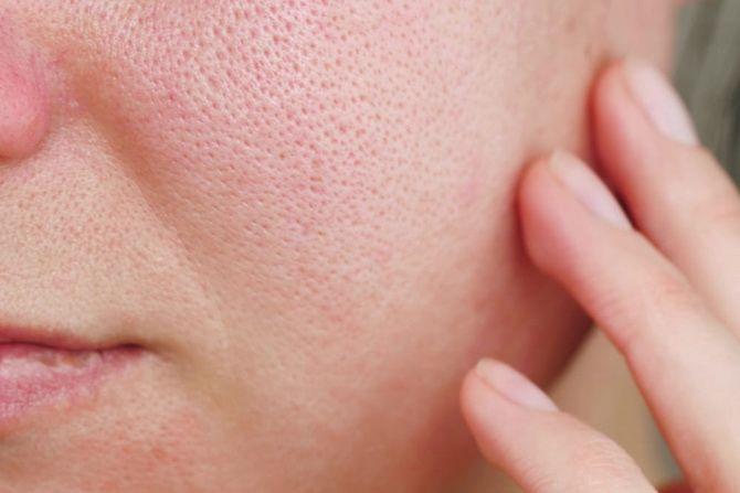 Как сузить поры на лице — 11 эффективных методов 1