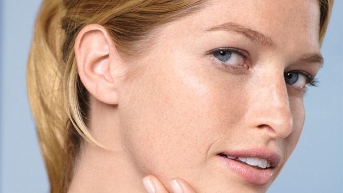 Занадто суха шкіра: про які проблеми зі здоров'ям вона може розповісти 2